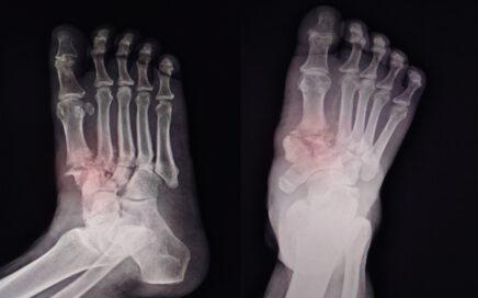 Broken Toe X-Ray