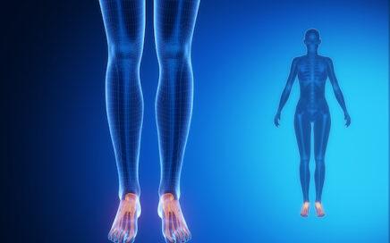 Osteoporosis & Feet