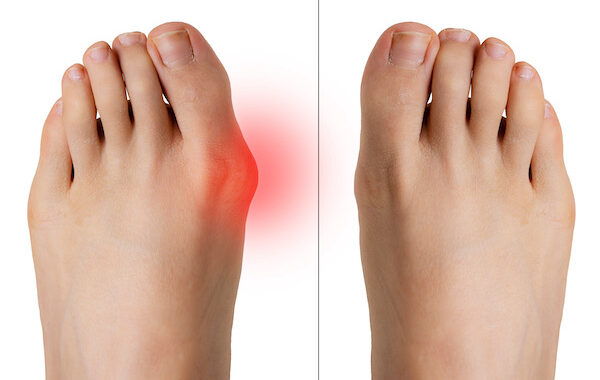 What Causes Bunions